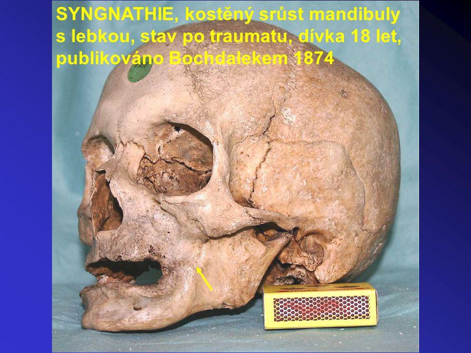 SYNGNATHIE, kostěný srůst mandibuly s lebkou, stav po traumatu, dívka 18 let, publikováno Bochdalekem 1874