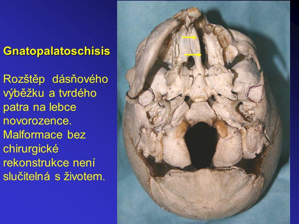 Gnatopalatoschisis Gnatopalatoschisis Rozštěp dásňového výběžku a tvrdého patra na lebce novorozence.