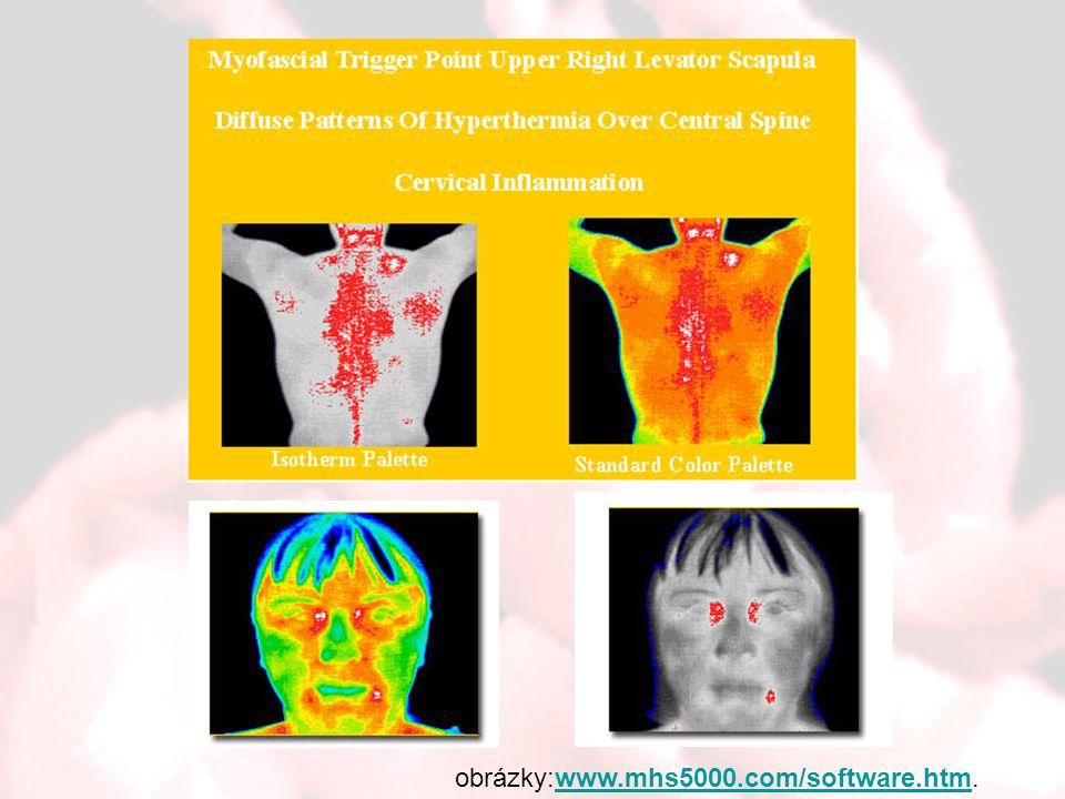obrázky:www.mhs5000.com/software.htm.www.mhs5000.com/software.htm