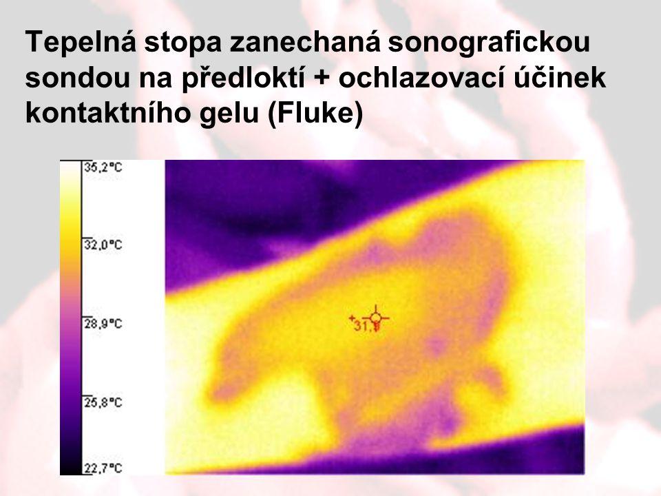 Tepelná stopa zanechaná sonografickou sondou na předloktí + ochlazovací účinek kontaktního gelu (Fluke)