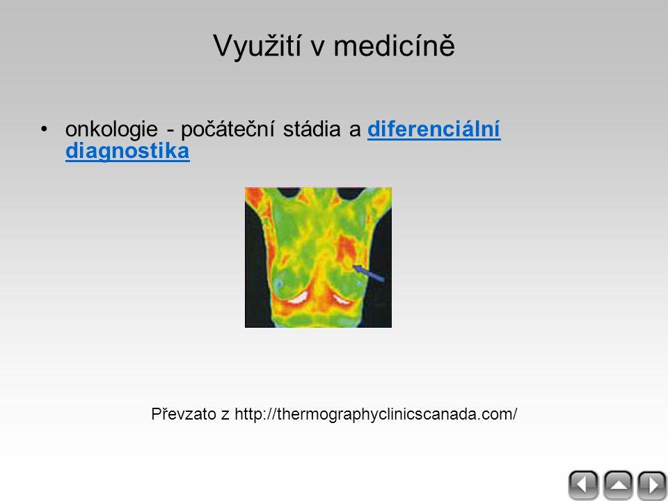 Využití v medicíně onkologie - počáteční stádia a diferenciální diagnostikadiferenciální diagnostika Převzato z http://thermographyclinicscanada.com/