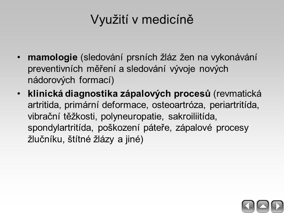Využití v medicíně mamologie (sledování prsních žláz žen na vykonávání preventivních měření a sledování vývoje nových nádorových formací) klinická dia