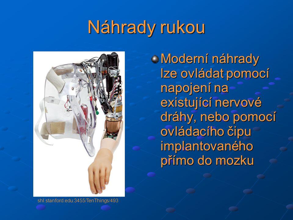 Náhrady rukou Moderní náhrady lze ovládat pomocí napojení na existující nervové dráhy, nebo pomocí ovládacího čipu implantovaného přímo do mozku shl.stanford.edu:3455/TenThings/493