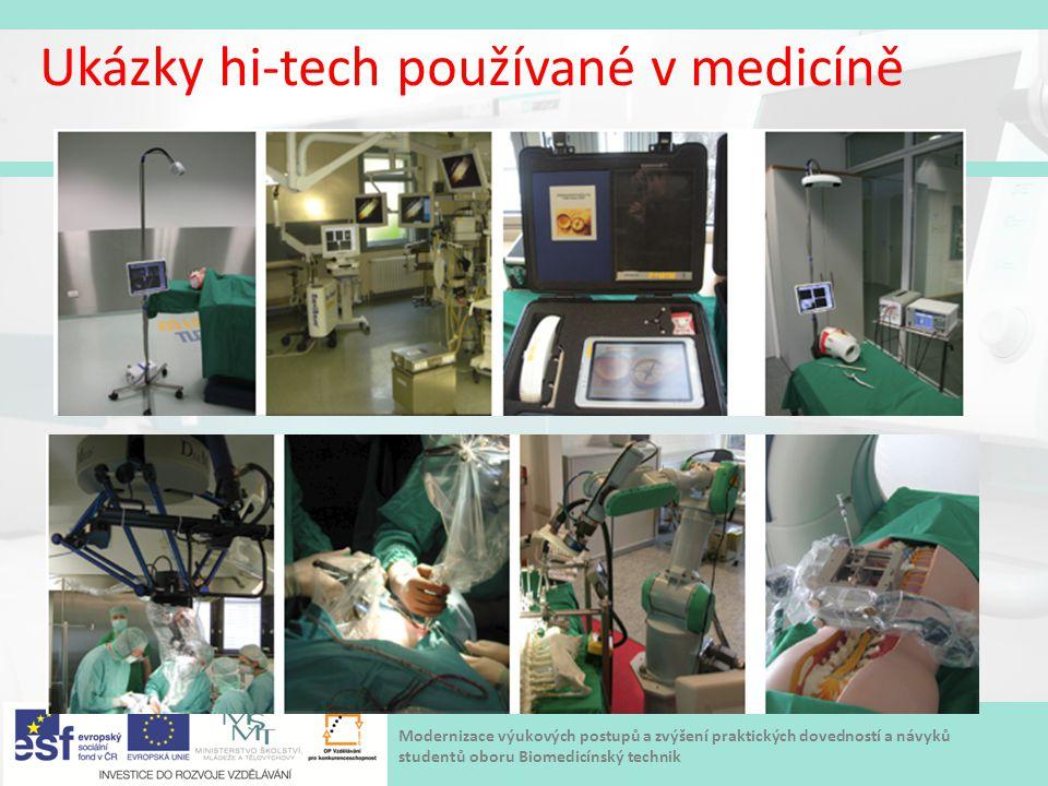 Modernizace výukových postupů a zvýšení praktických dovedností a návyků studentů oboru Biomedicínský technik Ukázky hi-tech používané v medicíně