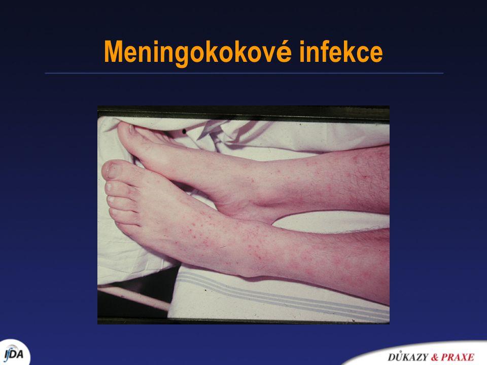 Meningokokov é infekce