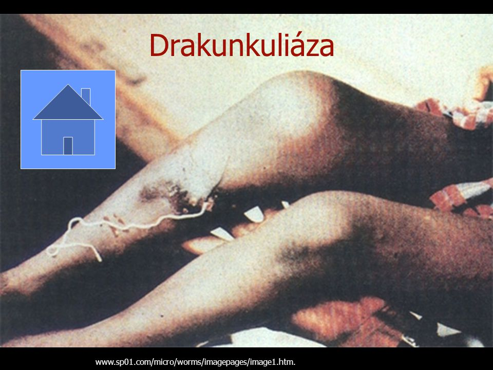 Drakunkuliáza www.sp01.com/micro/worms/imagepages/image1.htm.