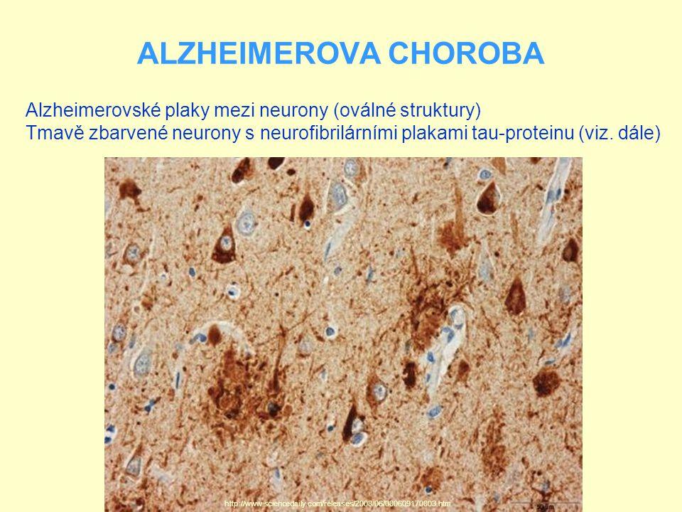 ALZHEIMEROVA CHOROBA Alzheimerovské plaky mezi neurony (oválné struktury) Tmavě zbarvené neurony s neurofibrilárními plakami tau-proteinu (viz.