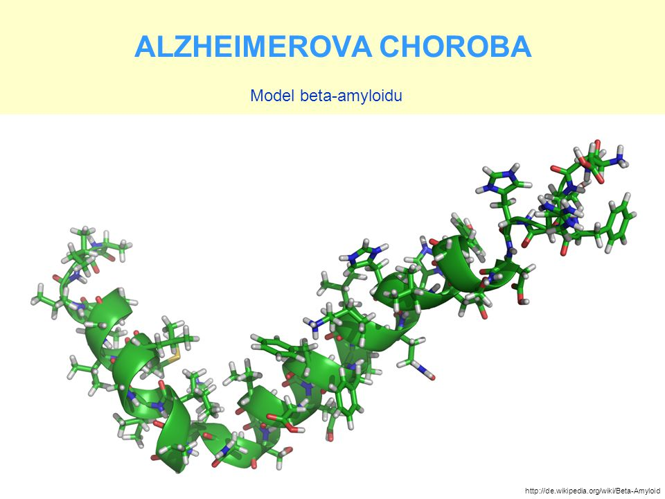 ALZHEIMEROVA CHOROBA Model beta-amyloidu http://de.wikipedia.org/wiki/Beta-Amyloid