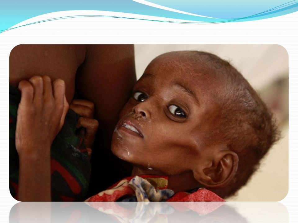 Příčiny hladu Chudoba Špatné ekonomické hospodaření státu Přelidnění Politicko-mocenský konflikt Nedostatek potravin a pitné vody.