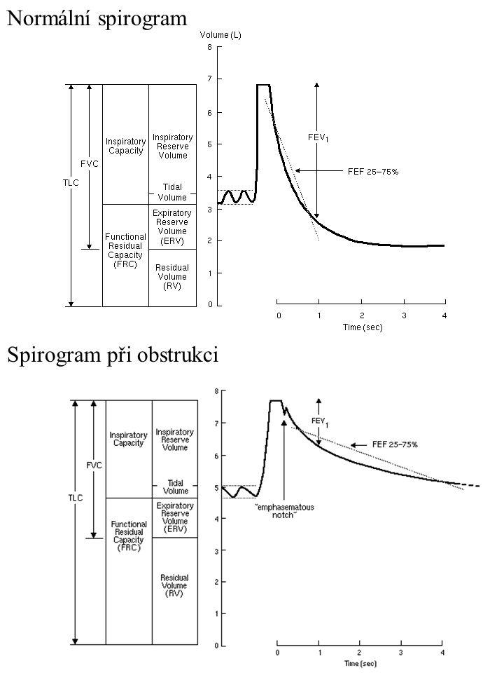Normální spirogram Spirogram při obstrukci