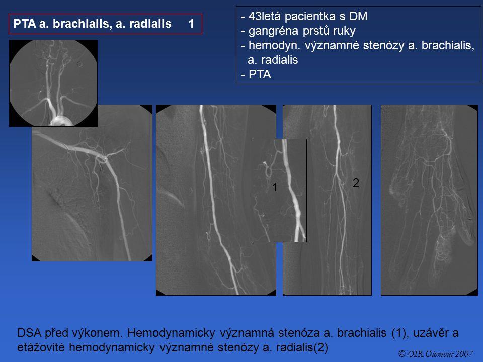 PTA a. brachialis, a. radialis 1 - 43letá pacientka s DM - gangréna prstů ruky - hemodyn. významné stenózy a. brachialis, a. radialis - PTA DSA před v