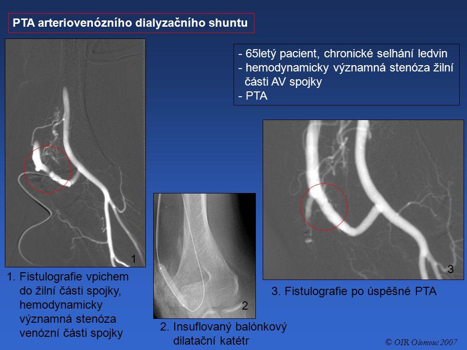 PTA arteriovenózního dialyzačního shuntu - 65letý pacient, chronické selhání ledvin - hemodynamicky významná stenóza žilní části AV spojky - PTA 1. Fi