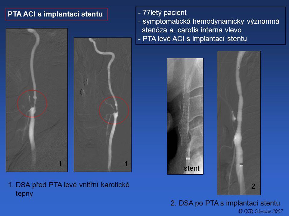PTA ACI s implantací stentu - 77letý pacient - symptomatická hemodynamicky významná stenóza a. carotis interna vlevo - PTA levé ACI s implantací stent