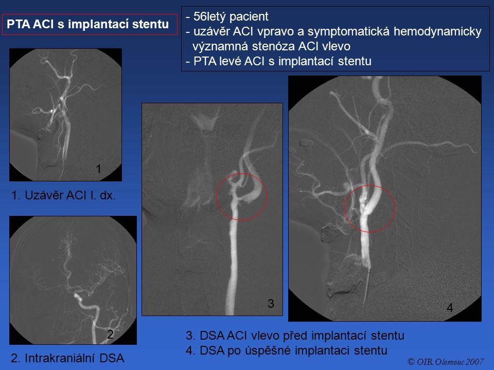 PTA ACI s implantací stentu - 56letý pacient - uzávěr ACI vpravo a symptomatická hemodynamicky významná stenóza ACI vlevo - PTA levé ACI s implantací