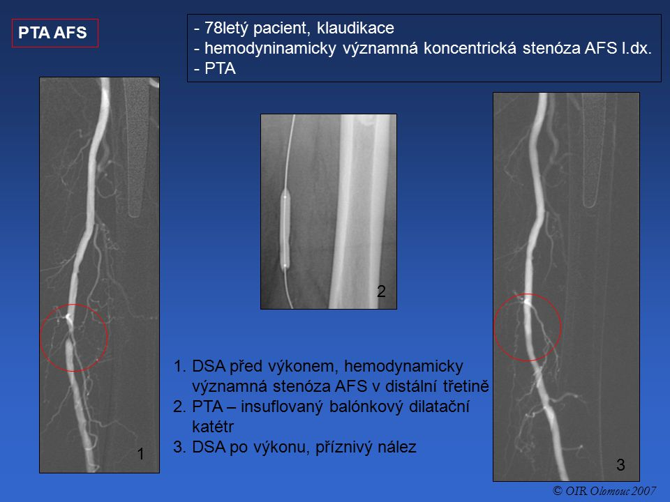 PTA AFS - 78letý pacient, klaudikace - hemodyninamicky významná koncentrická stenóza AFS l.dx. - PTA 1. DSA před výkonem, hemodynamicky významná stenó