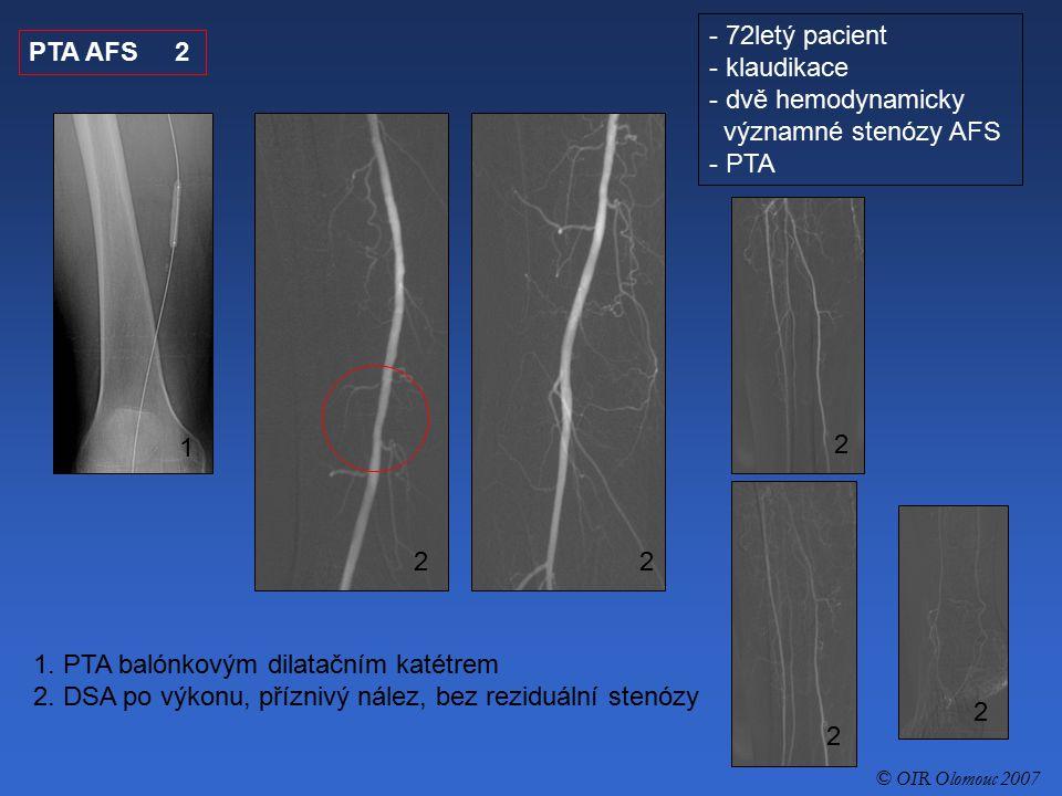PTA AFS 2 1. PTA balónkovým dilatačním katétrem 2. DSA po výkonu, příznivý nález, bez reziduální stenózy 1 2 2 2 2 2 - 72letý pacient - klaudikace - d
