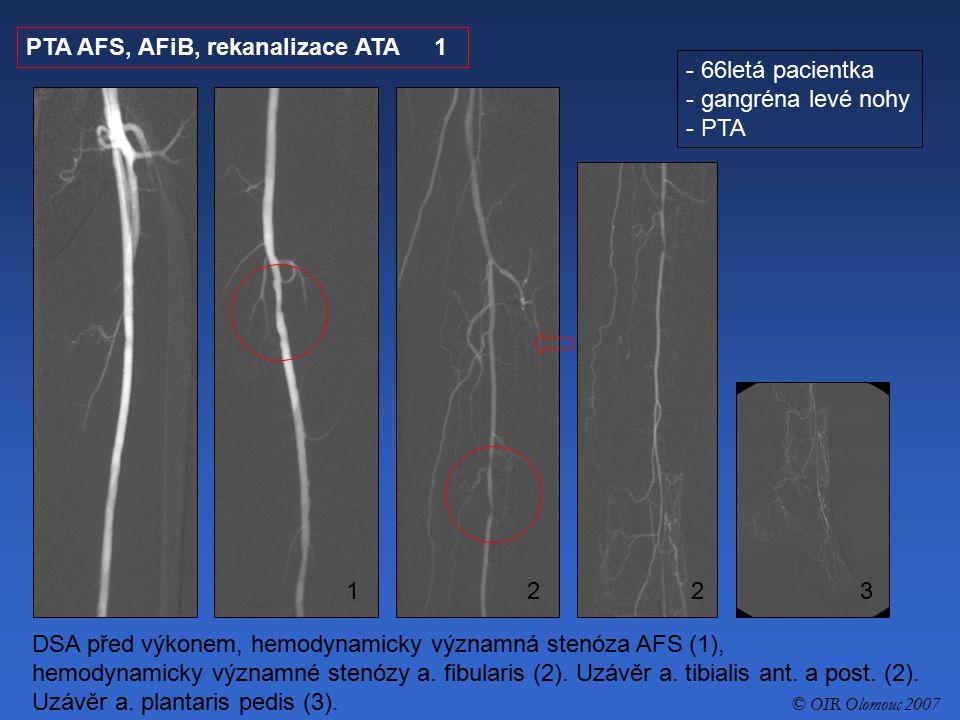 PTA AFS, AFiB, rekanalizace ATA 1 - 66letá pacientka - gangréna levé nohy - PTA DSA před výkonem, hemodynamicky významná stenóza AFS (1), hemodynamick