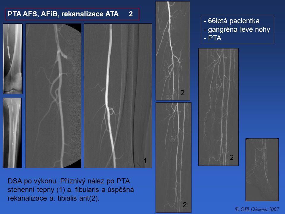 PTA AFS, AFiB, rekanalizace ATA 2 - 66letá pacientka - gangréna levé nohy - PTA DSA po výkonu. Příznivý nález po PTA stehenní tepny (1) a. fibularis a