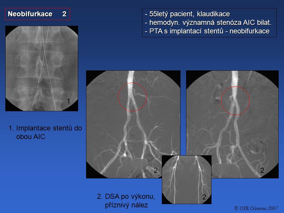 PTA AIC s implantací stentu 1 - 56letý pacient, klaudikace - hemodyn.