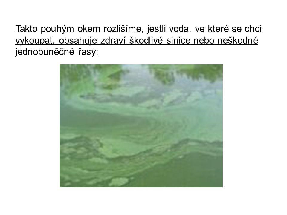 Takto pouhým okem rozlišíme, jestli voda, ve které se chci vykoupat, obsahuje zdraví škodlivé sinice nebo neškodné jednobuněčné řasy: