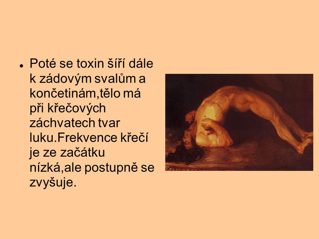 Poté se toxin šíří dále k zádovým svalům a končetinám,tělo má při křečových záchvatech tvar luku.Frekvence křečí je ze začátku nízká,ale postupně se zvyšuje.