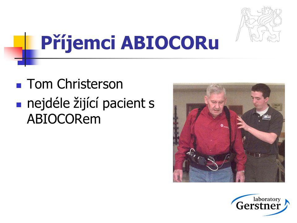 Příjemci ABIOCORu Tom Christerson nejdéle žijící pacient s ABIOCORem