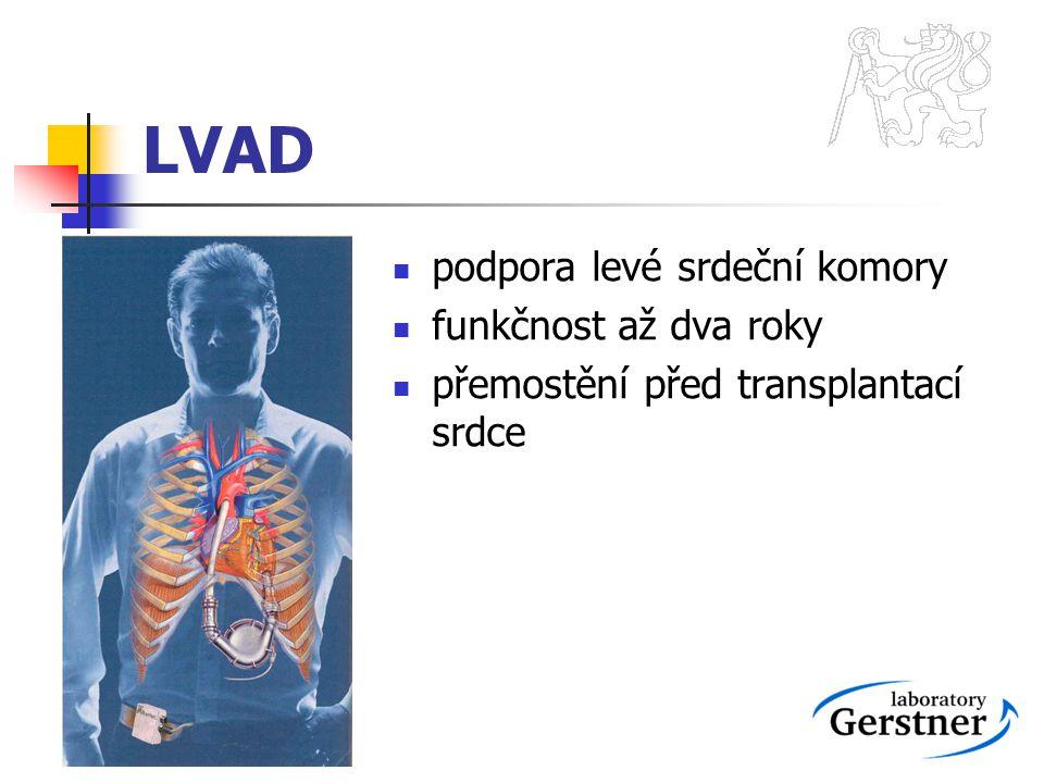 LVAD podpora levé srdeční komory funkčnost až dva roky přemostění před transplantací srdce