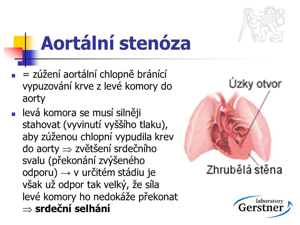 Aortální stenóza = zúžení aortální chlopně bránící vypuzování krve z levé komory do aorty levá komora se musí silněji stahovat (vyvinutí vyššího tlaku