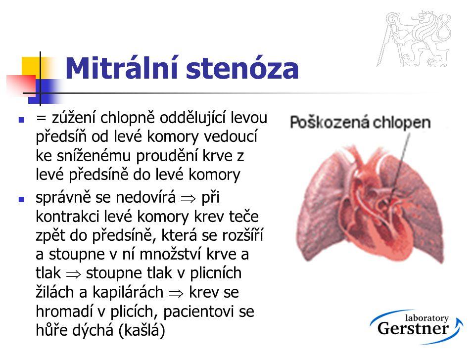 Mitrální stenóza = zúžení chlopně oddělující levou předsíň od levé komory vedoucí ke sníženému proudění krve z levé předsíně do levé komory správně se