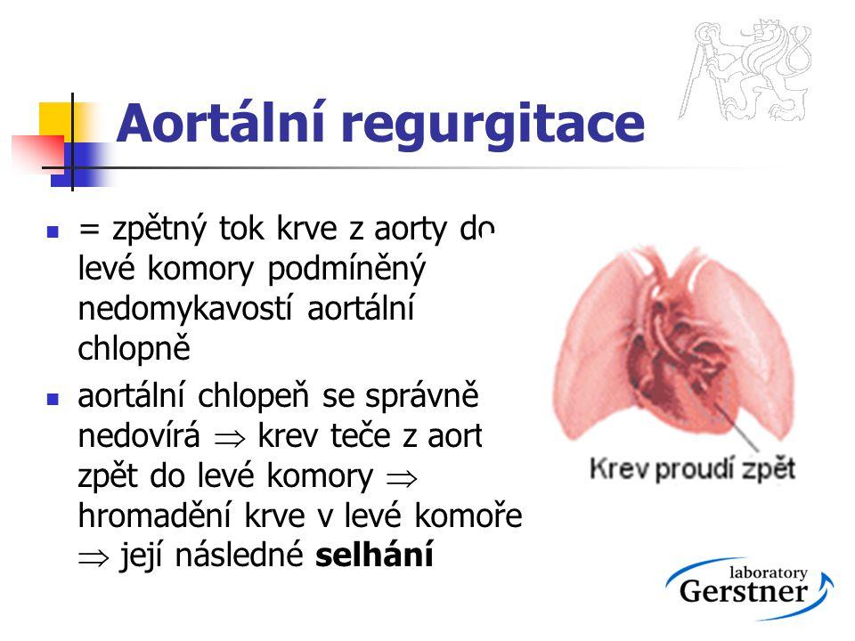 Aortální regurgitace = zpětný tok krve z aorty do levé komory podmíněný nedomykavostí aortální chlopně aortální chlopeň se správně nedovírá  krev teč