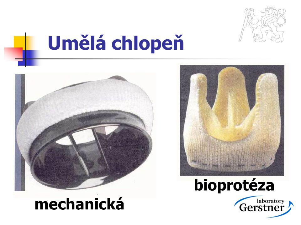 Umělá chlopeň mechanická bioprotéza