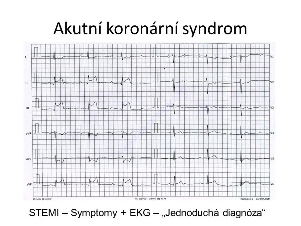 Akutní koronární syndrom nonSTEMI