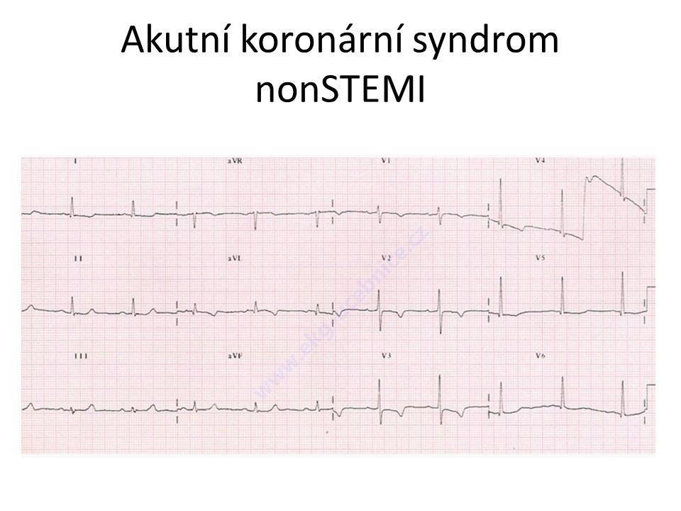 EKG – normální ??