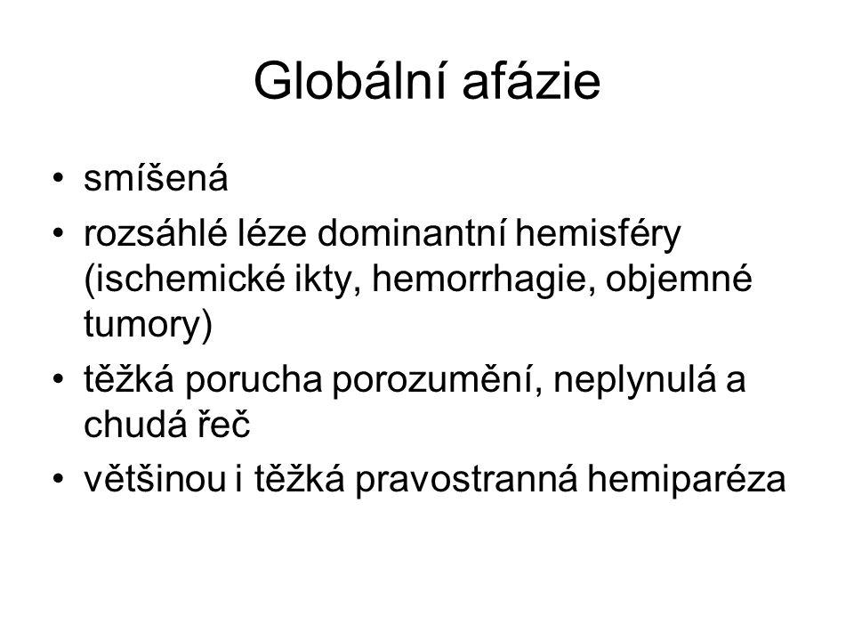 Globální afázie smíšená rozsáhlé léze dominantní hemisféry (ischemické ikty, hemorrhagie, objemné tumory) těžká porucha porozumění, neplynulá a chudá