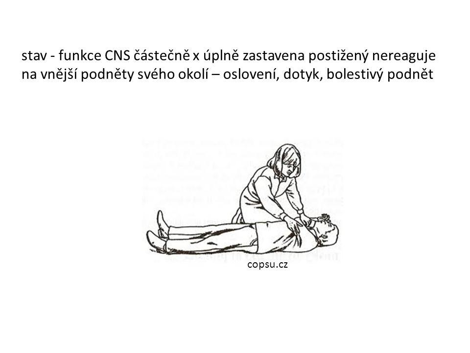 stav - funkce CNS částečně x úplně zastavena postižený nereaguje na vnější podněty svého okolí – oslovení, dotyk, bolestivý podnět copsu.cz