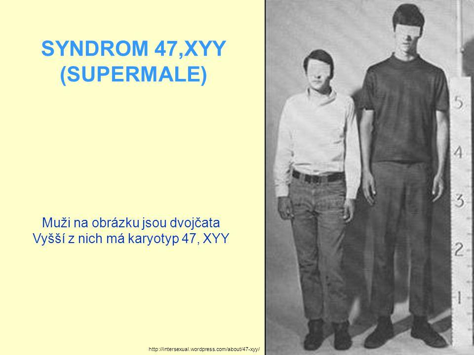 SYNDROM 47,XYY (SUPERMALE) Muži na obrázku jsou dvojčata Vyšší z nich má karyotyp 47, XYY http://intersexual.wordpress.com/about/47-xyy/