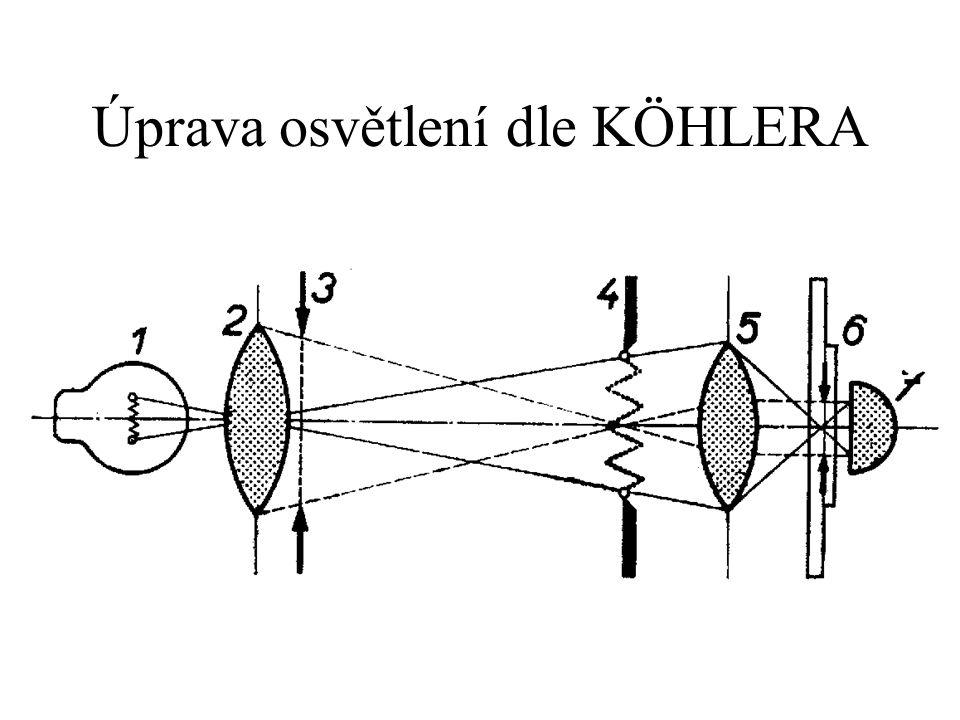 Obraz polní clony by měl být ve stejné rovině jako preparát – dosáhneme posunem kondenzoru.