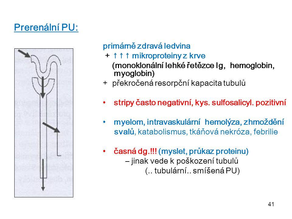 41 Prerenální PU: primárně zdravá ledvina + ↑↑↑ mikroproteiny z krve (monoklonální lehké řetězce Ig, hemoglobin, myoglobin) + překročená resorpční kap