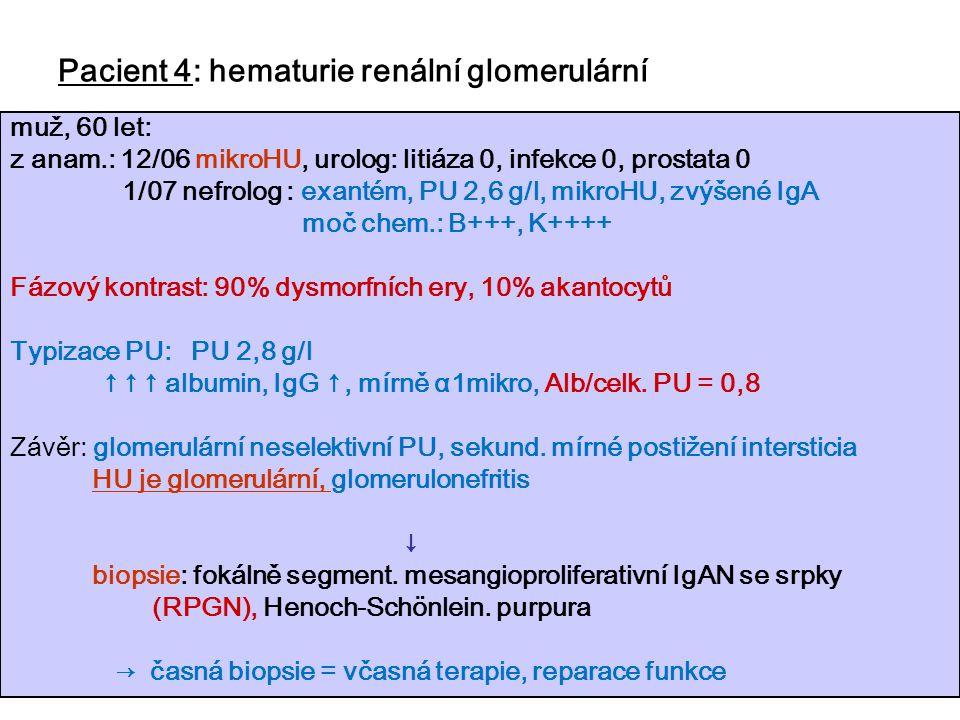 60 Pacient 4: hematurie renální glomerulární muž, 60 let: z anam.: 12/06 mikroHU, urolog: litiáza 0, infekce 0, prostata 0 1/07 nefrolog : exantém, PU