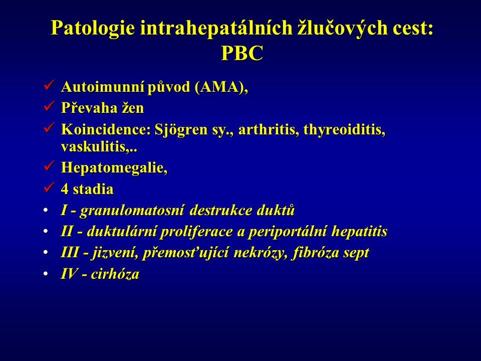 Patologie intrahepatálních žlučových cest: PBC Autoimunní původ (AMA), Autoimunní původ (AMA), Převaha žen Převaha žen Koincidence: Sjögren sy., arthritis, thyreoiditis, vaskulitis,..