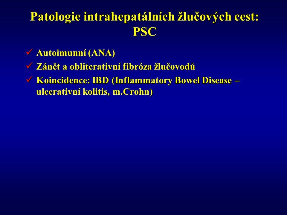 Patologie intrahepatálních žlučových cest: PSC Autoimunní (ANA) Autoimunní (ANA) Zánět a obliterativní fibróza žlučovodů Zánět a obliterativní fibróza žlučovodů Koincidence: IBD (Inflammatory Bowel Disease – ulcerativní kolitis, m.Crohn) Koincidence: IBD (Inflammatory Bowel Disease – ulcerativní kolitis, m.Crohn)