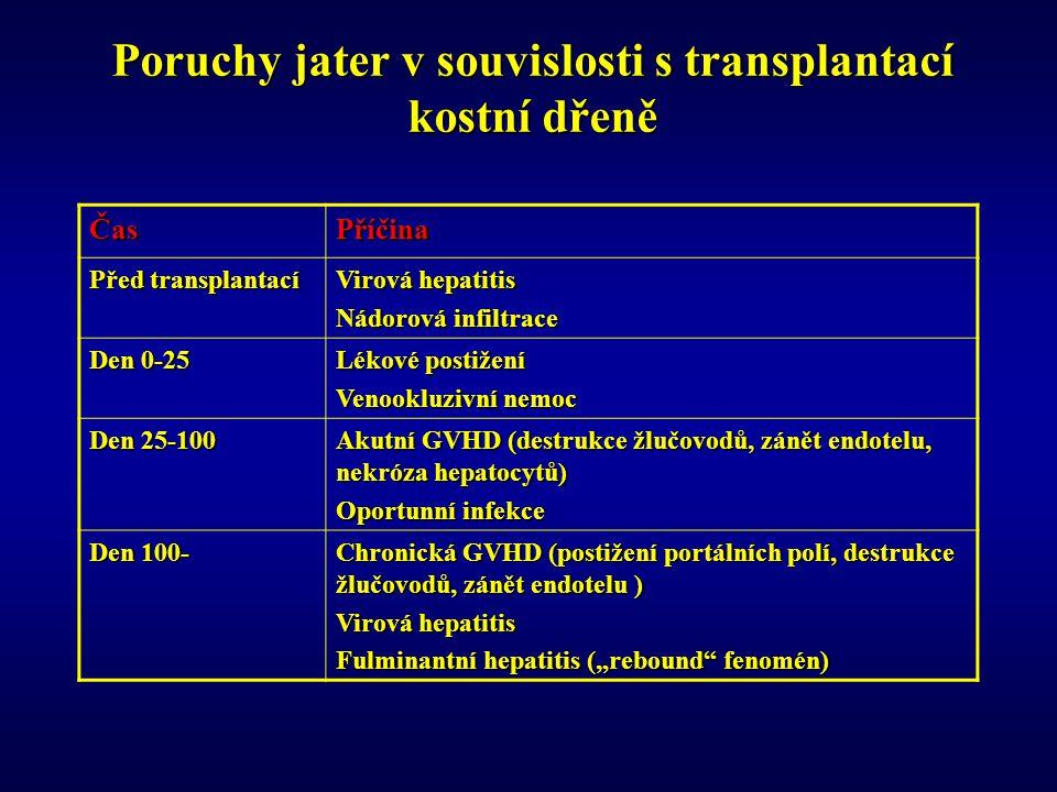 """Poruchy jater v souvislosti s transplantací kostní dřeně ČasPříčina Před transplantací Virová hepatitis Nádorová infiltrace Den 0-25 Lékové postižení Venookluzivní nemoc Den 25-100 Akutní GVHD (destrukce žlučovodů, zánět endotelu, nekróza hepatocytů) Oportunní infekce Den 100- Chronická GVHD (postižení portálních polí, destrukce žlučovodů, zánět endotelu ) Virová hepatitis Fulminantní hepatitis (""""rebound fenomén)"""