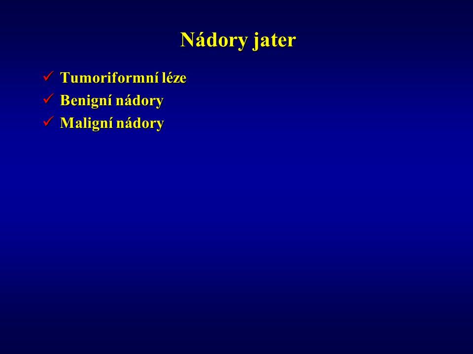 Nádory jater Tumoriformní léze Tumoriformní léze Benigní nádory Benigní nádory Maligní nádory Maligní nádory