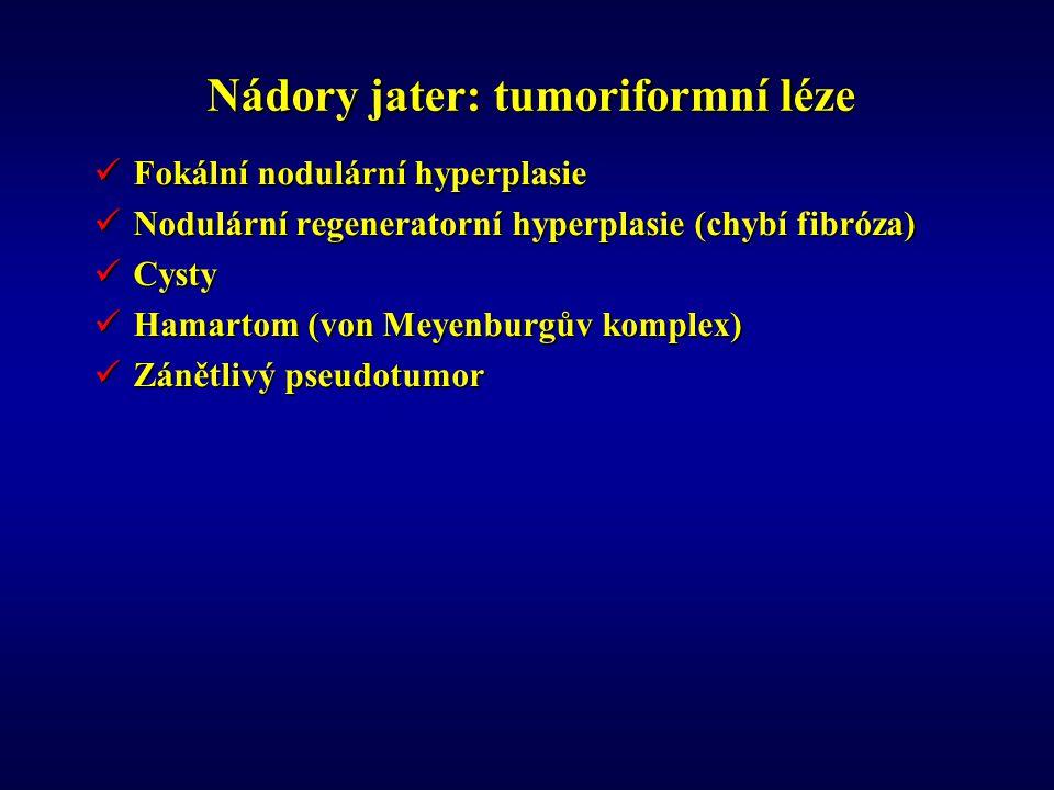 Nádory jater: tumoriformní léze Fokální nodulární hyperplasie Fokální nodulární hyperplasie Nodulární regeneratorní hyperplasie (chybí fibróza) Nodulární regeneratorní hyperplasie (chybí fibróza) Cysty Cysty Hamartom (von Meyenburgův komplex) Hamartom (von Meyenburgův komplex) Zánětlivý pseudotumor Zánětlivý pseudotumor