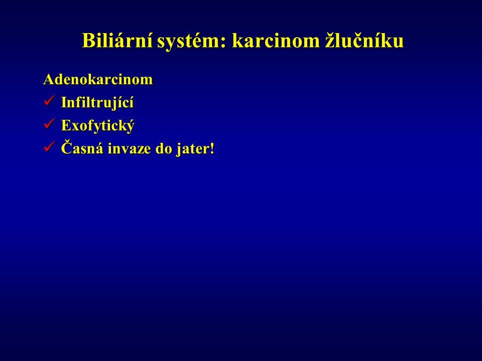 Biliární systém: karcinom žlučníku Adenokarcinom Infiltrující Infiltrující Exofytický Exofytický Časná invaze do jater.