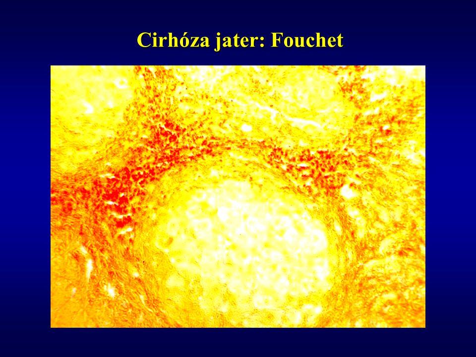 Cirhóza jater: Fouchet