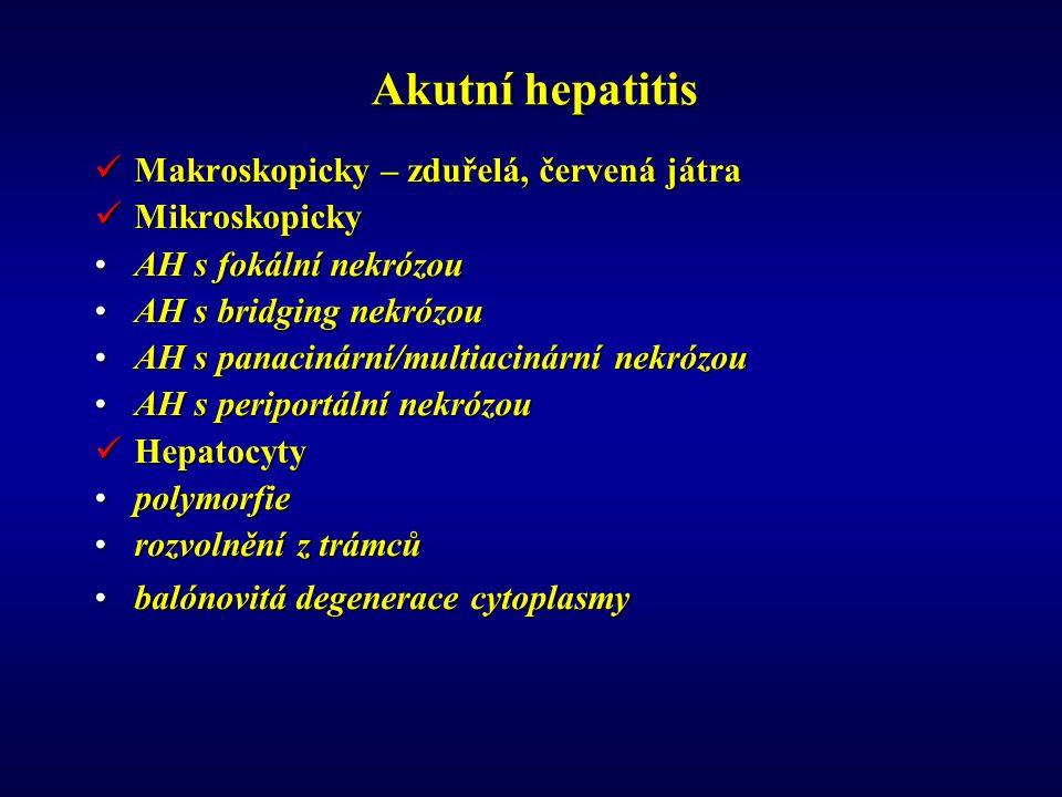 Akutní hepatitis Makroskopicky – zduřelá, červená játra Makroskopicky – zduřelá, červená játra Mikroskopicky Mikroskopicky AH s fokální nekrózouAH s fokální nekrózou AH s bridging nekrózouAH s bridging nekrózou AH s panacinární/multiacinární nekrózouAH s panacinární/multiacinární nekrózou AH s periportální nekrózouAH s periportální nekrózou Hepatocyty Hepatocyty polymorfiepolymorfie rozvolnění z trámcůrozvolnění z trámců balónovitá degenerace cytoplasmybalónovitá degenerace cytoplasmy