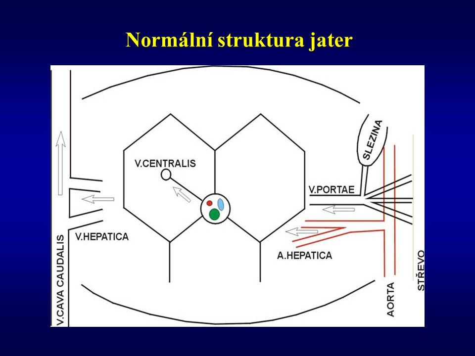 Normální struktura jater