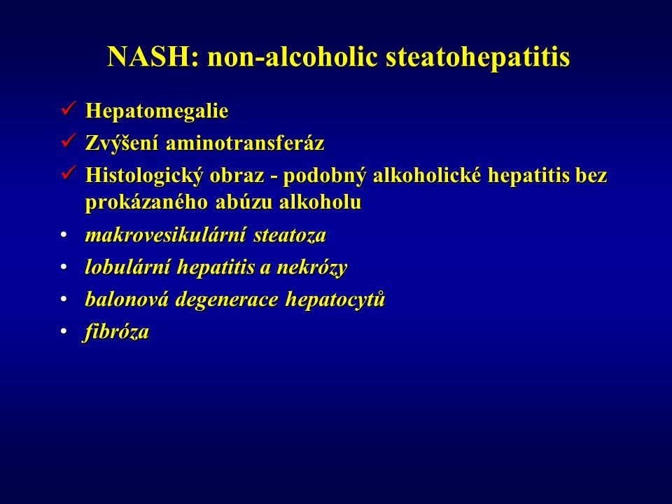 NASH: non-alcoholic steatohepatitis Hepatomegalie Hepatomegalie Zvýšení aminotransferáz Zvýšení aminotransferáz Histologický obraz - podobný alkoholické hepatitis bez prokázaného abúzu alkoholu Histologický obraz - podobný alkoholické hepatitis bez prokázaného abúzu alkoholu makrovesikulární steatozamakrovesikulární steatoza lobulární hepatitis a nekrózylobulární hepatitis a nekrózy balonová degenerace hepatocytůbalonová degenerace hepatocytů fibrózafibróza