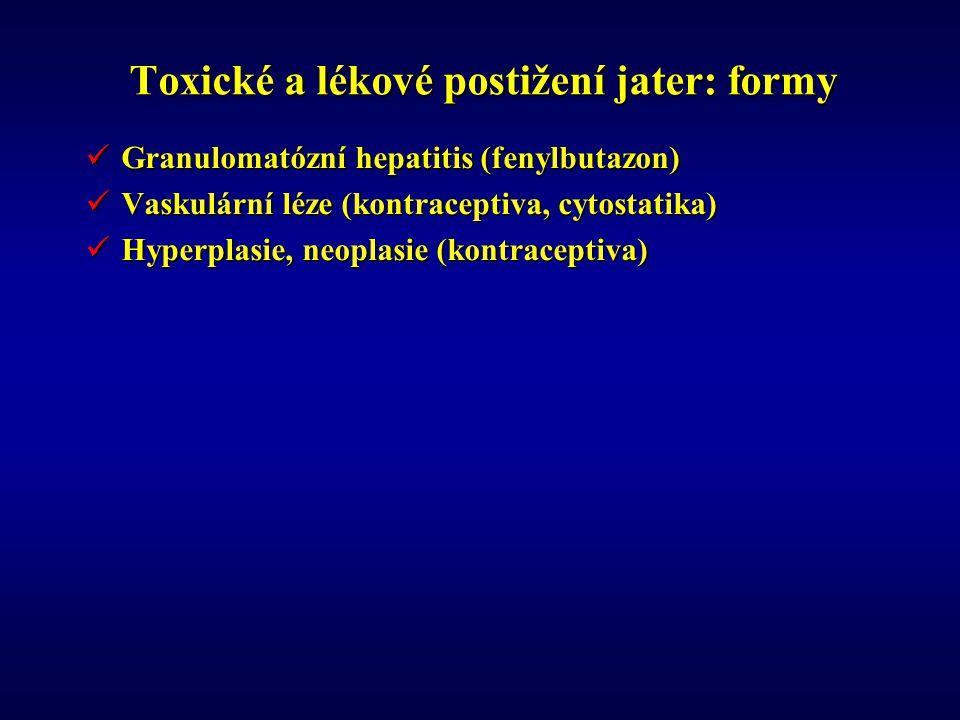 Toxické a lékové postižení jater: formy Granulomatózní hepatitis (fenylbutazon) Granulomatózní hepatitis (fenylbutazon) Vaskulární léze (kontraceptiva, cytostatika) Vaskulární léze (kontraceptiva, cytostatika) Hyperplasie, neoplasie (kontraceptiva) Hyperplasie, neoplasie (kontraceptiva)